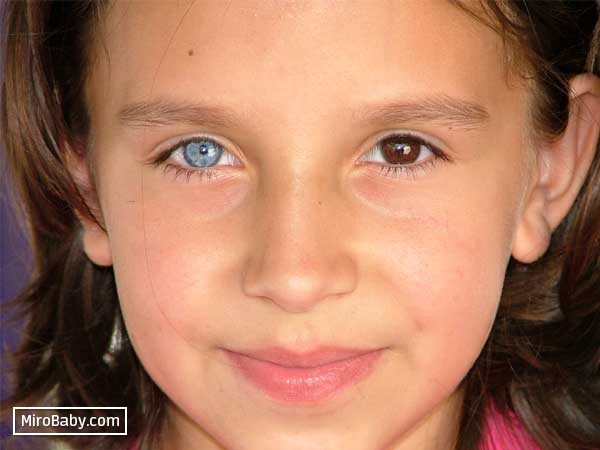 У ребенка разного цвета глаза